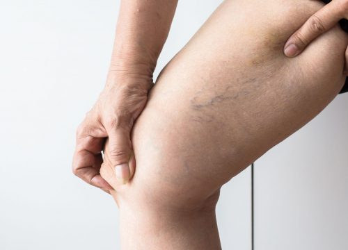 Spider veins on a woman's leg