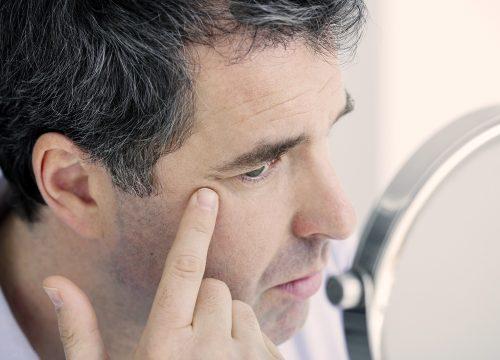 Older man experiencing skin laxity