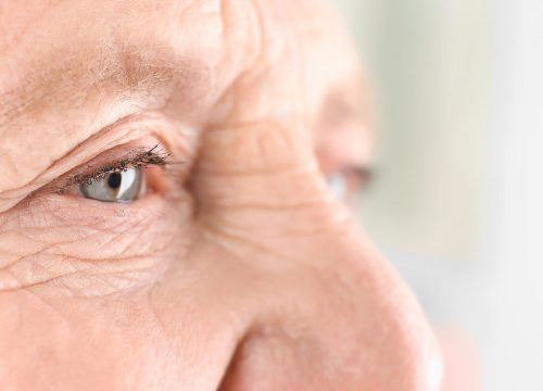 Older person with macular degeneration
